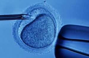 Two groups are bringing ultra cheap IVF to Africa.