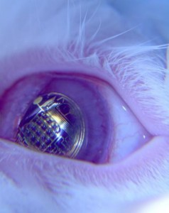 Augmented Reality is getting much closer. This contact lens has embedded metallic circuits that could one day be used to project images directly onto your eye.