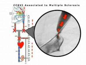 Could MS be caused by restricted blood flow? One Italian scientist has gotten amazing results by treating blocked veins in MS patients.