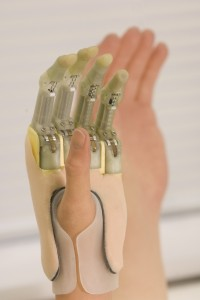 Touch Bionics is moving forward with its prosthetic fingers. They have much of the same capability as the i-Limb, but customized to each amputee's unique physiology.