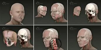 face transplant spain
