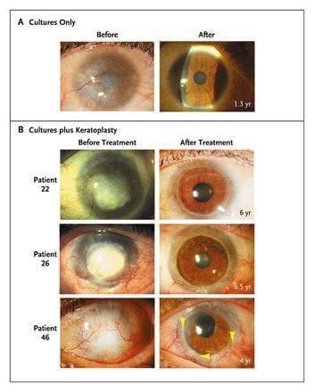 Stem Cell Blindness