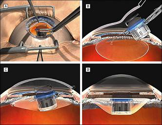 implantable-telescope-FDA-approval-diagram