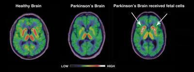 parkinson's-transplant