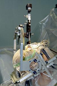 parkinson-implants-surgery