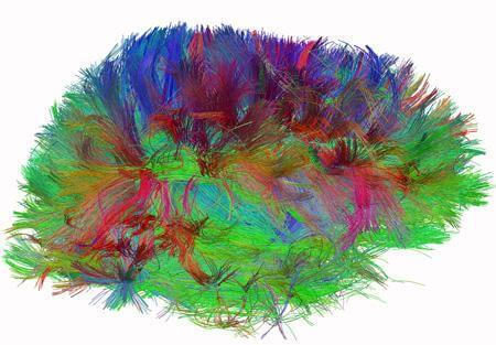 connectome-brain-diffusion-spectrum-imaging
