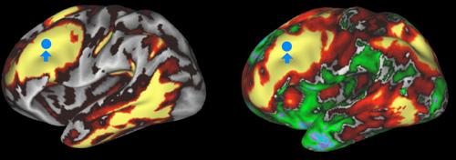 connectome-brain
