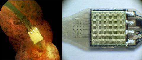 retinal-implant-cyborg