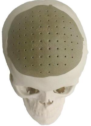 OsteoFab
