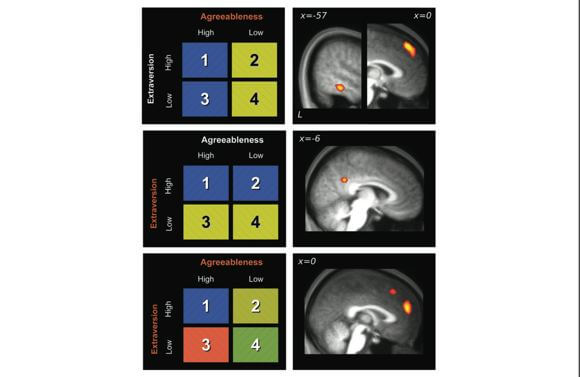 "Varying degrees of a person's deemed ""agreeableness"" and ""extraversion"" combine to produce different brain activation patterns in the brain. [Source: Cerebral Cortex]"