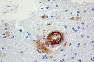 beta-amyloid-brain-alzheimers