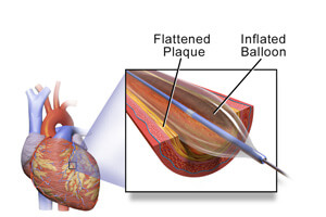 Angioplasty_Blausen-medical-communications