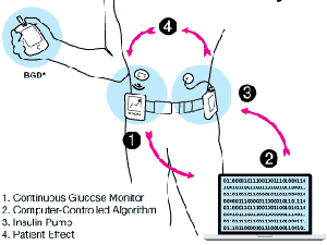 artificial-pancreas-device