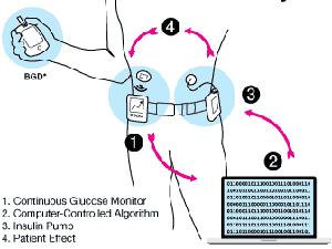 artificial-pancreas-device