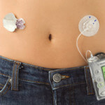 artificial-pancreas-torso