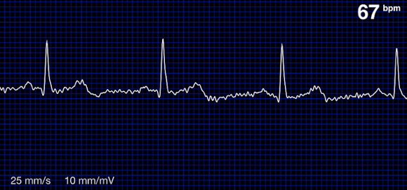 Heart_Monitor (1)