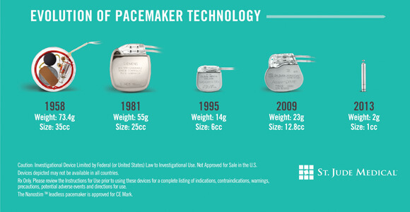 pacemakers-through-the-years