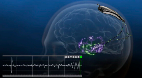 Neurostimulator_Detects_Seizures (1)