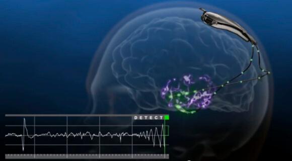 Neurostimulator_Detects_Seizures (1)