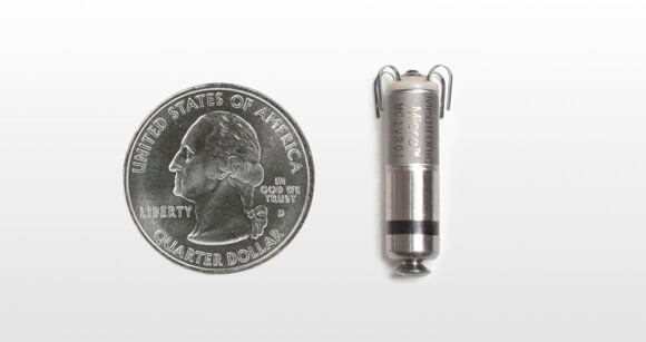 Medtronic_Tiny_Micra_Pacemaker (1)