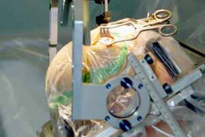 Parkinson_surgery