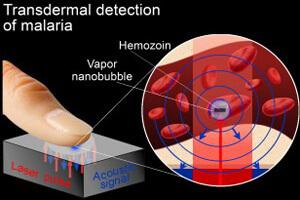 transdermal-malaria-test