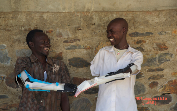 3d-printed-prosthetic-arm-project-daniel-sudan