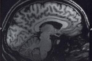 brain-fmri
