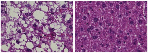 Microscope images show the liver tissue of control animals (left) and mice that lack the SIRT7 gene magnified by a factor of 400. Whereas the control animals form large numbers of fat depots when fed a high-fat diet, the SIRT7-knockout mice do not develop fatty liver. [Photo: Max Planck institute]