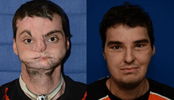 facial-transplant-nyu 1