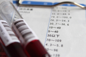 blood-test-image