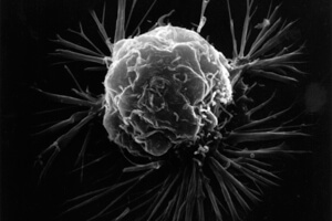 Malfunctioning cells, like this breast cancer cells, are one of de Grey's seven prime contributors to aging.