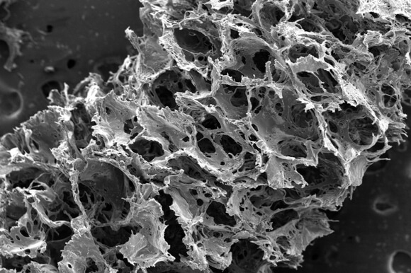 microscopic-silk-sponge-brain