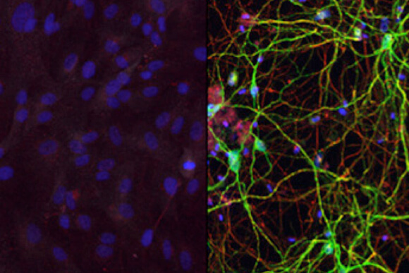 Human skin cells (left) converted into medium spiny neurons (right) using a combination of microRNAs and transcription factors.
