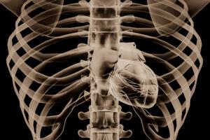 x-ray-heart-1