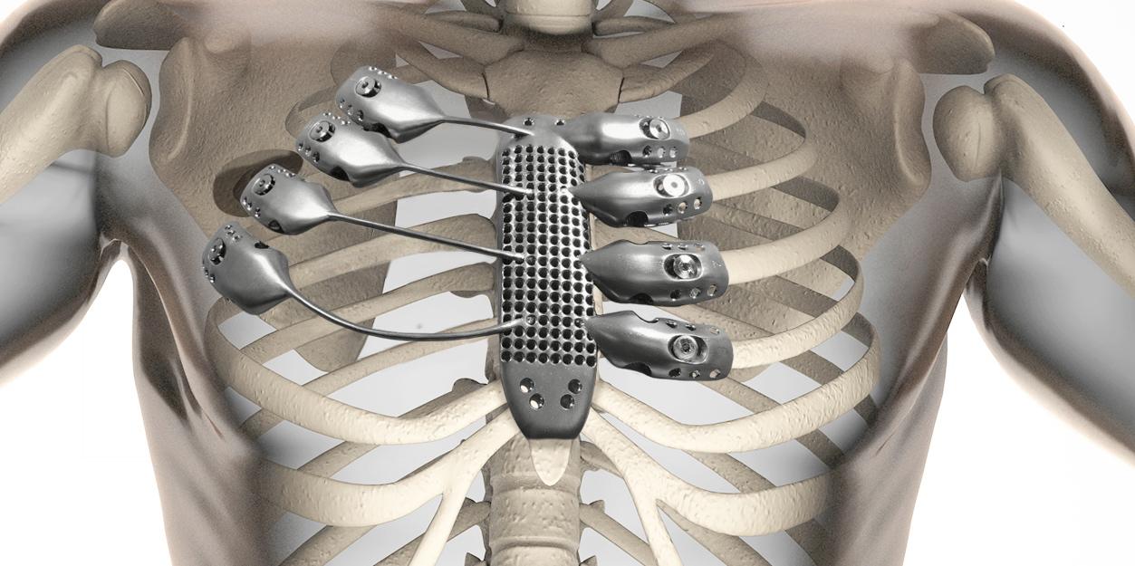 We Can Rebuild Him Patient Receives 3d Printed Titanium Ribs And