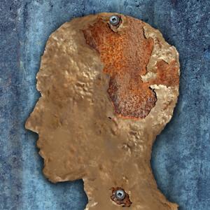 brain-aging-stem-cells-study-2