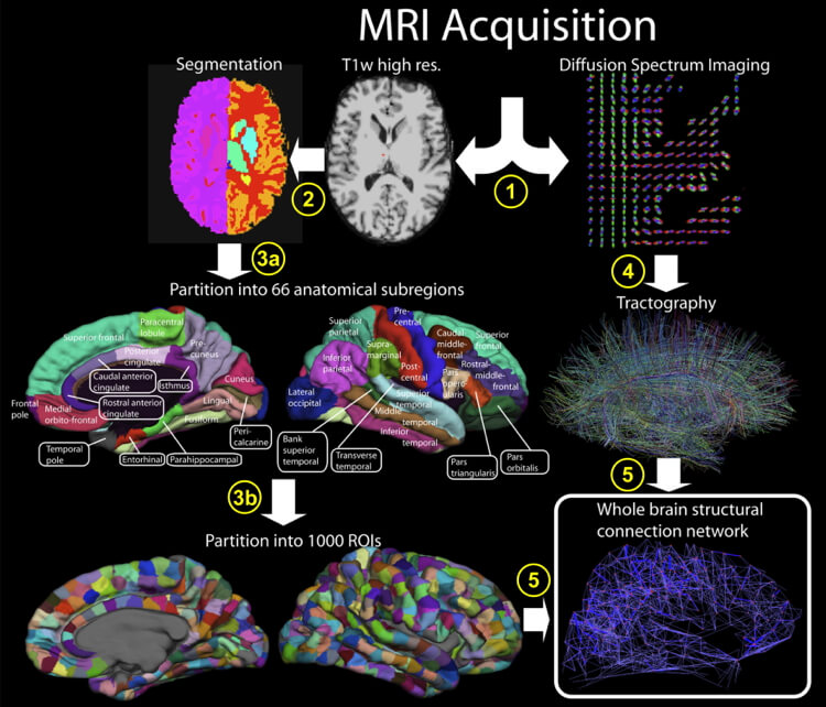 Connectome extraction procedure: scientists partition a brain scan into hundreds of regions, and use a technique called tractography to extract out functional connections.