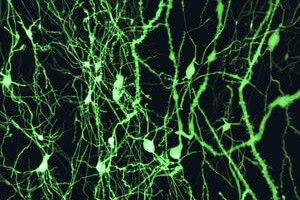 The Secret to the Brain's Memory Capacity May Be Synapse Size