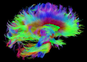A macro-level map of the brain's white matter. Image credit: The Human Connectome Project