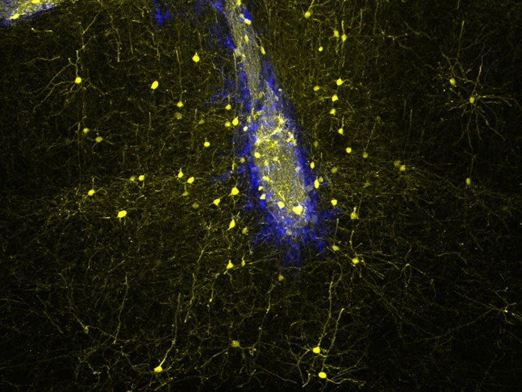Neuronal transplants (blue) connect with host neurons (yellow) in the adult mouse brain in a highly specific manner, rebuilding neural networks lost upon injury. Image credit: Sofia Grade (LMU/Helmholtz Zentrum München)