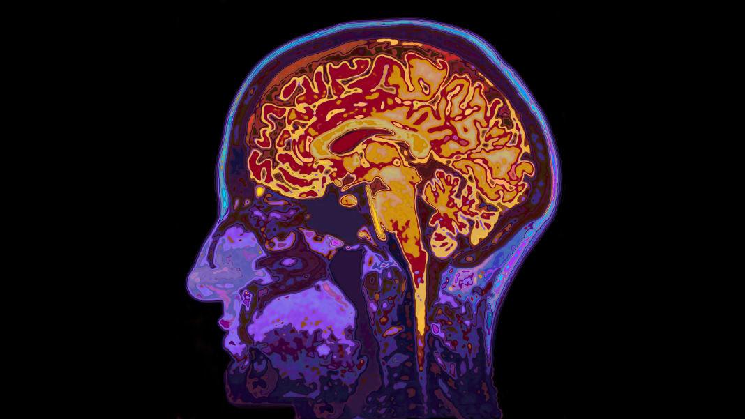 neural-implants-brain-augmentation-mri-image-head-showing-brain-060677413