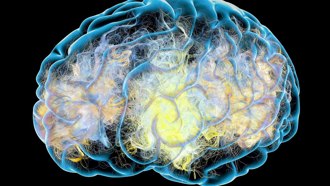 alzheimers-brain-illustration