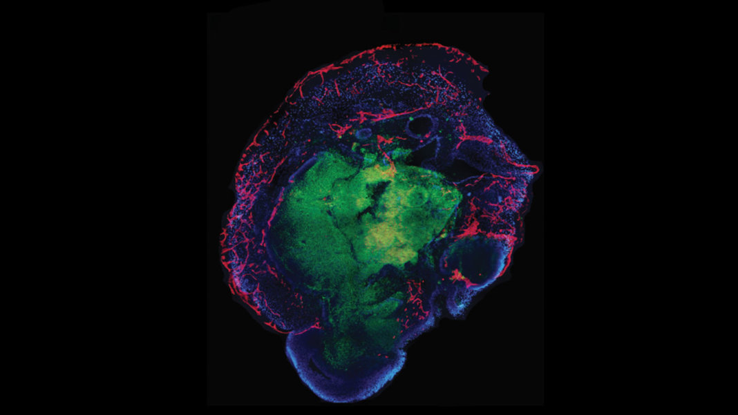 organoid-cross-section-bleeding-mini-brain-blood-vessels-neuroscience