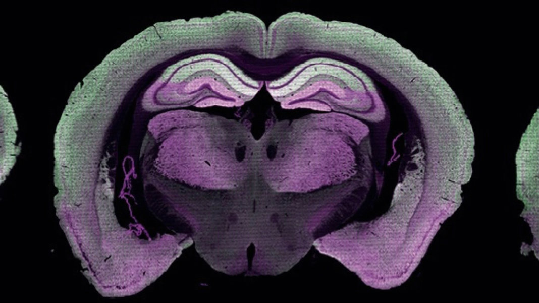 Amazing New Brain Map of Every Synapse Points to the Roots of Thinking