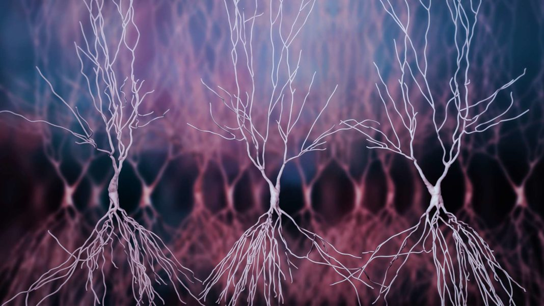 3D computer reconstruction human hippocampus neurons