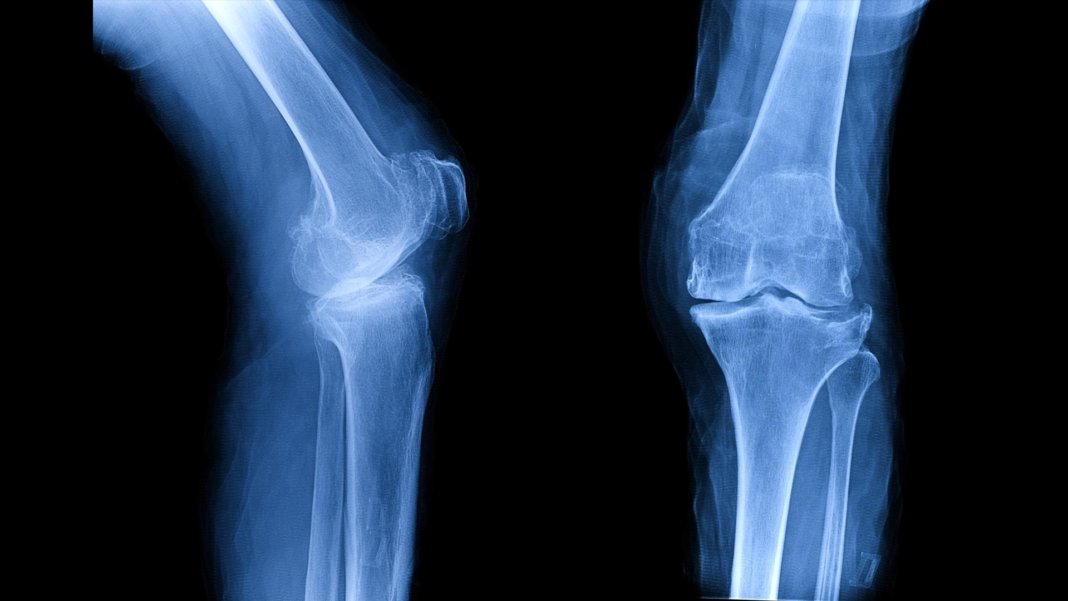 xray film showing osteoarthritis knee