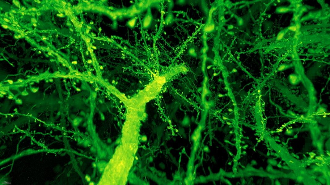 Neuroscientists Illuminate Role Of >> Neuroscientists Just Found A Way To Image The Brain 1 000 Times