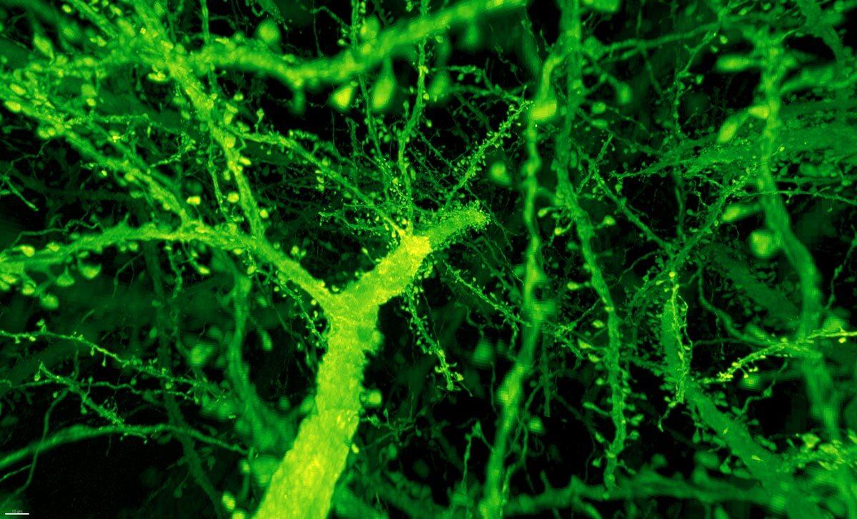 Gao et al dendritic spines