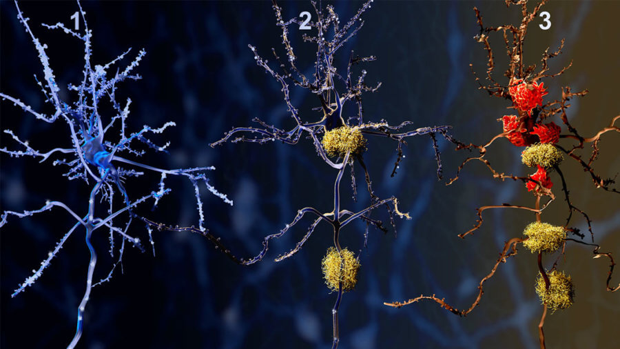 3 phases neurons alzheimer disease gene therapy